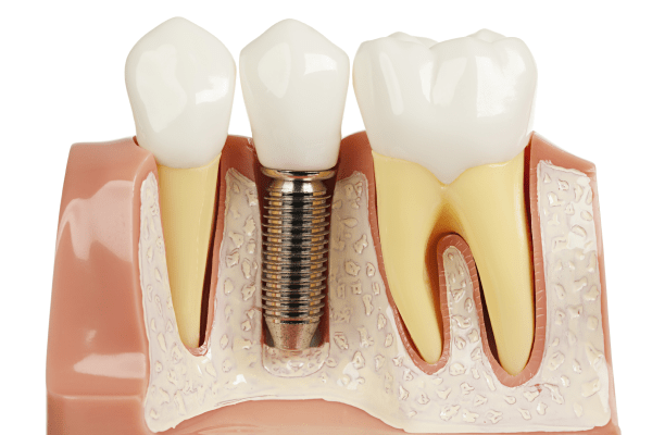 global-dental-bone-graft-substitutes-market